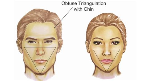 Facial Feminization: Systematic Review– Jeffrey H